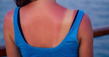 Close up burnt female skin